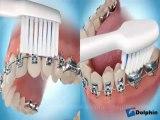 Brossage des dents avec un appareil dentaire