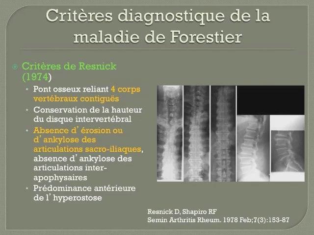 Comment différencier la spondylarthrite ankylosante de la maladie de Forestier sur le plan radiologique ?