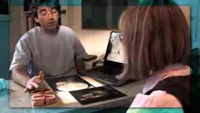 Types de dispositif en orthodontie pour adulte (géne occasionné)