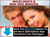 Moles Warts & Skin Tags Removal Free Download + Moles Warts & Skin Tags Removal Review
