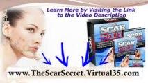 acne scar remedies - chicken pox scar - scar solution