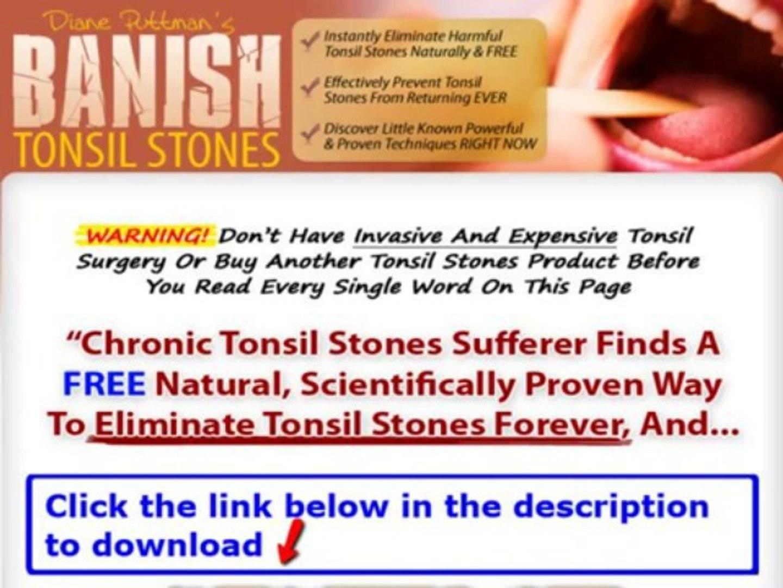 Banish Tonsil Stones Guide + Banish Tonsil Stones