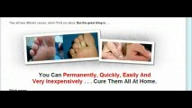 Moles Warts _ Skin Tags Removal - Removing Skin Tags At Home Guide - Review