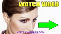 Herpes Cure Breakthrough HSV Treatment May Help With Oral And