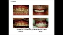 Dental Implants Calgary - Family Dentist Calgary-Teeth Whitening Calgary - Pediatric Dentist Calgary