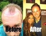 Hair Transplant Clinic London   CALL 0203 086 9065