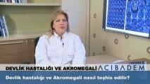 Devlik hastalığı ve akromegali nasıl teşhis edilir