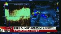 Ebru Gündeş Bebeğini Kaybetti ŞOK ŞOK