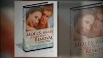 Moles Warts Skin Tags Removal - Review of Charles Davidson Moles Warts Skin Tags Removal System
