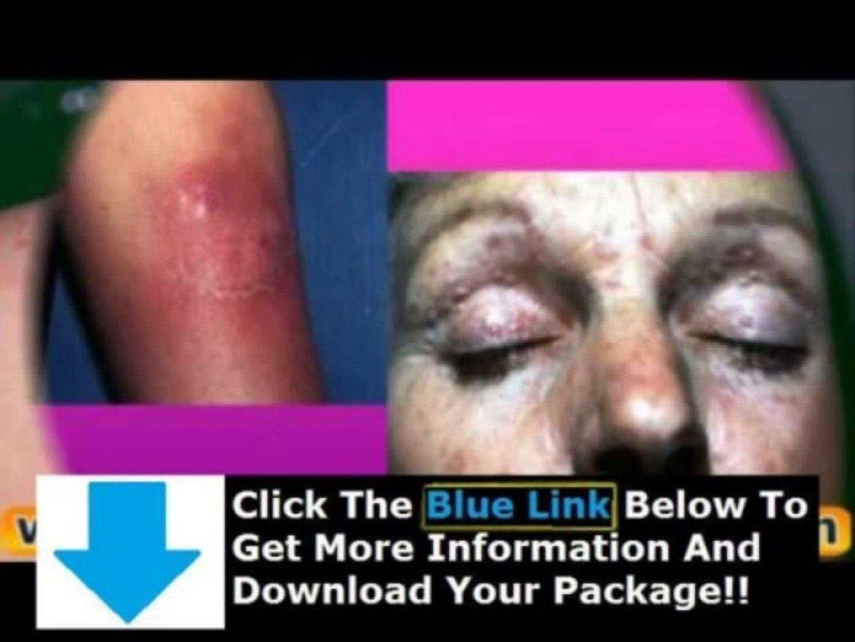 Lupus Bible Norton Protocol + Lupus Bible Review