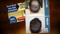Total Hair Regrowth Review - A Hair Regrowth Review