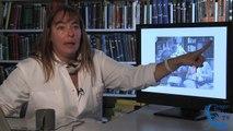 Autisme : Les Troubles du spectre autistique - Dr Monica Zilbovicius