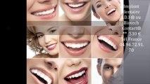 prix implant dentaire espagne Barcelone