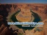 Minoxidil Sakal Çıkarıcı Losyon