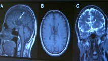 Metal used in cell phones may increase stroke risk