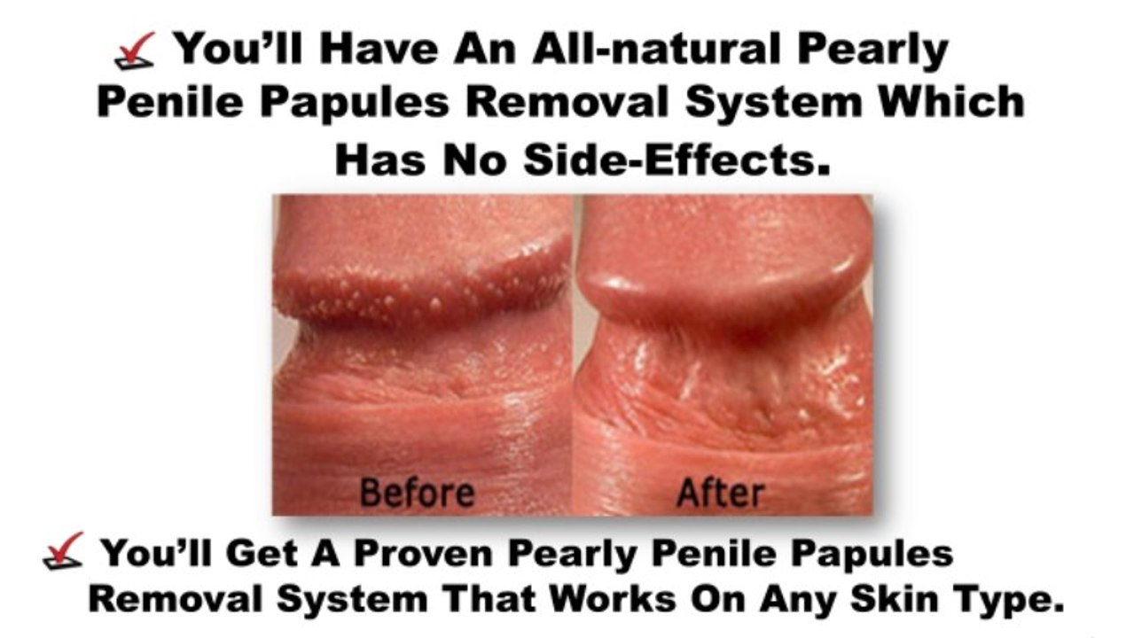 To penile papules remove pearly naturally how How to
