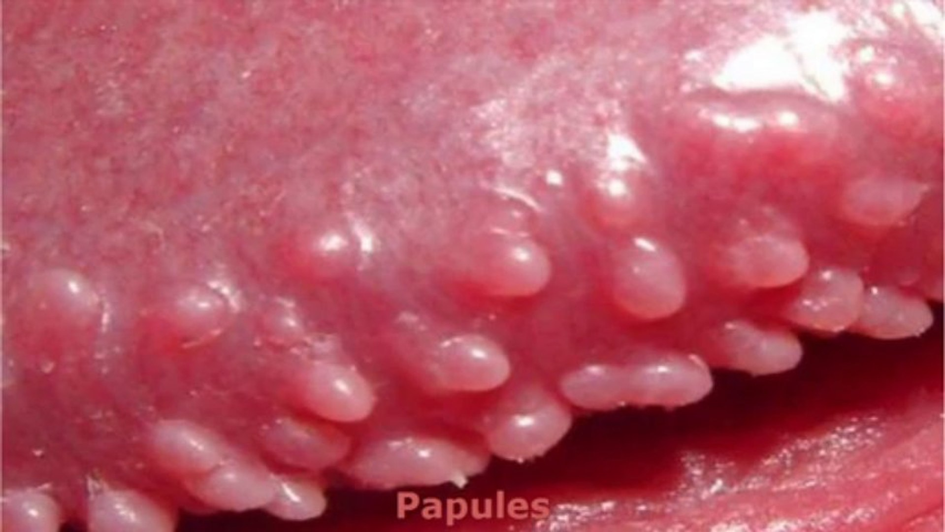 Is prominence what sebaceous Prominent Sebaceous