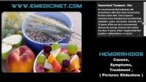 Hemorrhoids Causes, Symptoms, and Treatment - High Quality -1280x720