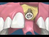 video-implant-dentaire-regeneration-osseuse-guidee