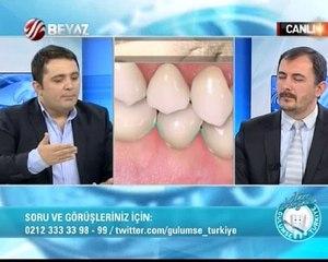 Gülümse Türkiye 09.02.2014