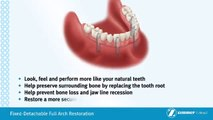 Fixed Dental Implant Dentures Orlando Tampa Affordable dentures orlando kissimmee tooth replacement  the villages,