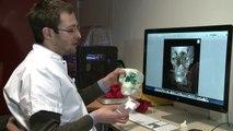Impresora 3D mejora cirugías reconstructivas
