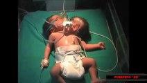 Naissance dun bébé à 2 têtes en Inde