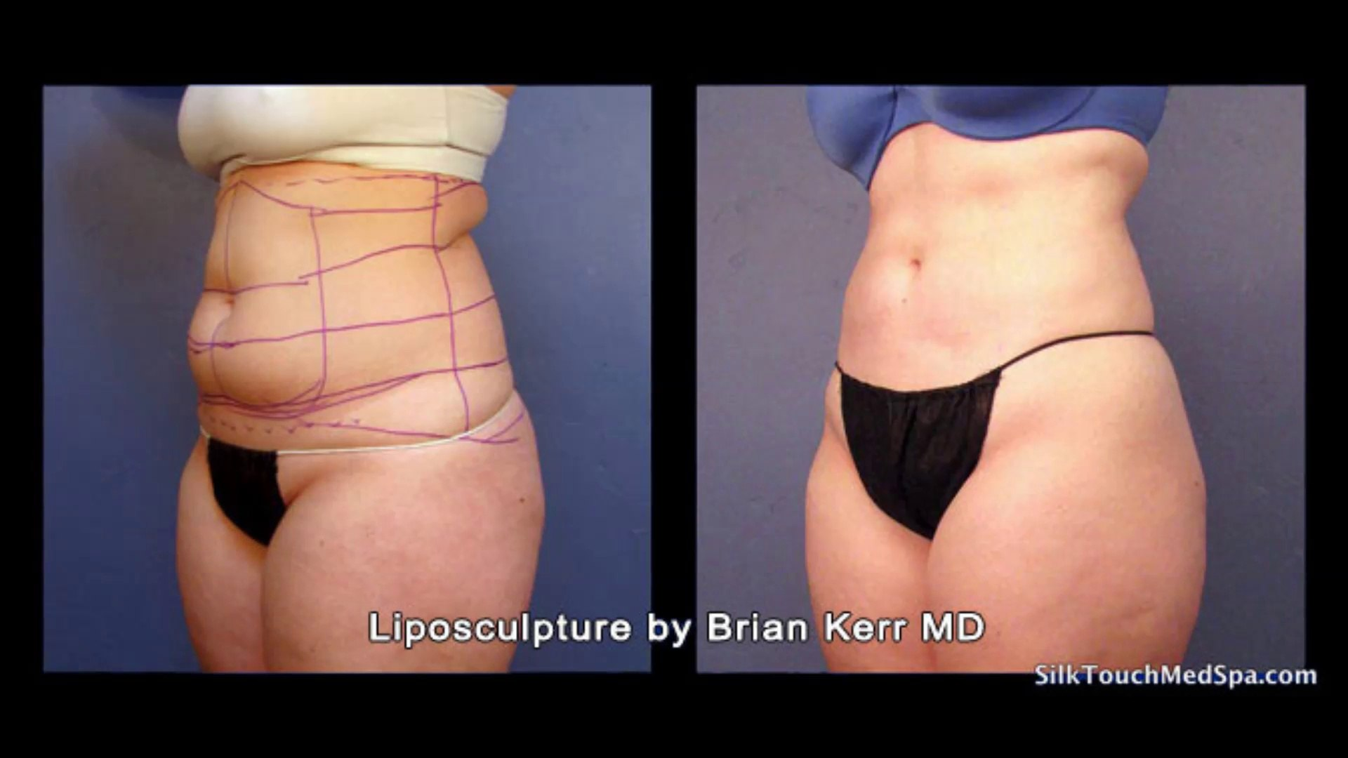 Smartlipo Laser Lipo on Female Abdomen | Before and After Photos by Silk  Touch Medical Aesthetics