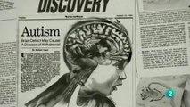 Cerebro autista: Hipotesis etiologicas