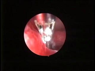Endometrial polip ameliyatı (Rahim içi polip)