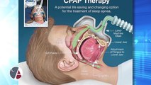 How a CPAP Device Compares to an Oral Appliance to Treat Sleep Apnea, With Dr. Rich Gillespie, Vancouver, Washington