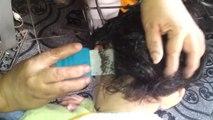 Un enfant a les cheveux infestés de poux