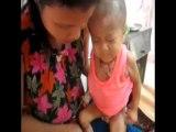 Video - Rơi nước mắt nhìn hai bé bị bỏng rơi từng miếng thịt - Dân trí