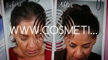 hair loss shampoo - hair loss treatment - hair loss women - Dr. Ari Arumugam - Hari Transplant Chennai - Dr. Ari Chennai