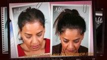hair fall treatment - hair growth - hair growth products - Dr. Ari Chennai - Dr. Ari Arumugam - Plastic Surgery Chennai