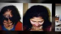 hair implants - hair loss - hair loss causes - Dr. Ari Arumugam - hair Transplant Chennai - Dr. Ari Chennai