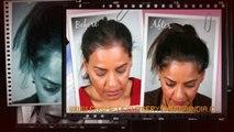 hair growth shampoo, hair implants, hair loss, Dr. Ari Chennai, Dr. Ari Arumugam, hair Loss Treatment Chennai