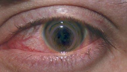 Girl's Eyes EATEN by Amoebas After Prolonged Contact Use