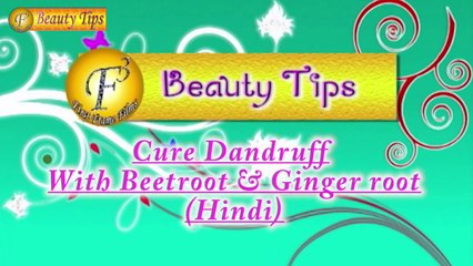 Home Remedy of Beetroot to get rid of the biggest hair problem Dandruff