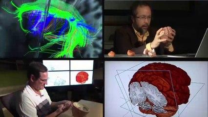 L'odyssée du cerveau