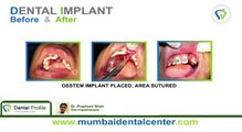 Dental Clinic in Navi Mumbai-Dental implants in Ghatkopar | Dentists in Ghatkopar | Dental Clinic in Ghatkopar