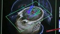 Cerebro: Lenguaje y memoria (UGR)