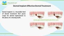 How Dental Implants can bring back your Sparkling Smile?