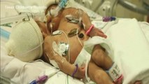 Conjoined twin girls to be separated in Texas