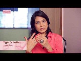 Dr. Jaishree Sharad || Freckles || Causes & Prevention || Skinfiniti