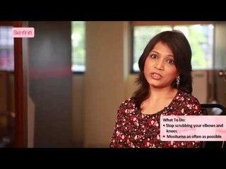 Treating Dark Elbows and Knees || Dr. Jaishree Sharad || Skinfiniti