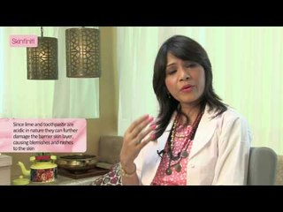 Dr. Jaishree Sharad || Breaking Some Myths On Acne & Pimples || Skinfiniti