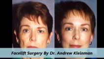 Kleinman Plastic Surgery Facelift Procedure