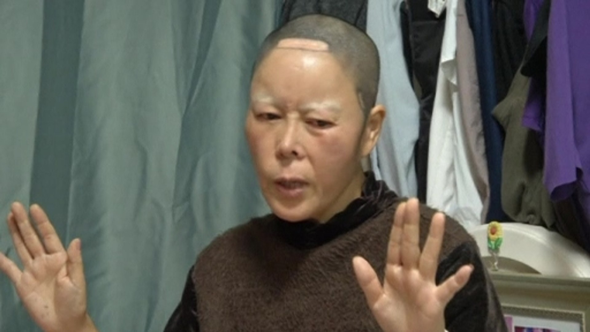 Botched jobs in South Korea's plastic surgery