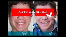 Acne Free In 3 Days - Acne Free In 3 Days Review [How to Acne Free In 3 Days]